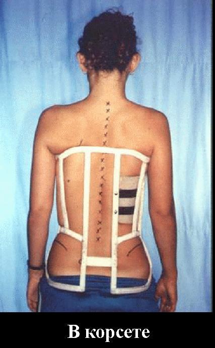 Сколиоз грудного отдела что делать