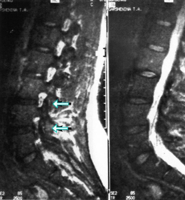 Магнитно-резонансная томография пояснично-крестцового отдела позвоночника больных первой группы.